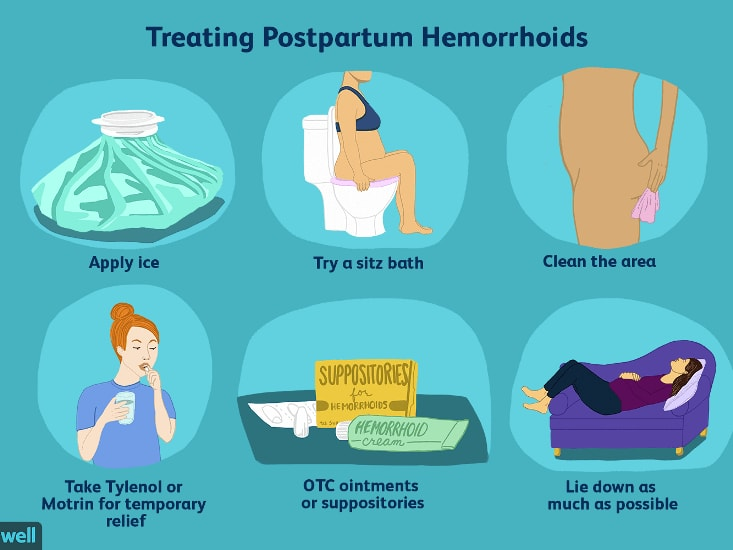 Suffering from External Hemorrhoids, Know What Are the ...